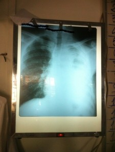 Chest x-ray 001