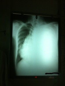 Chest x-ray 002